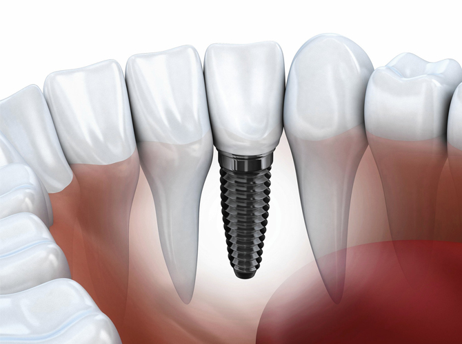 Dental Implants Armenia