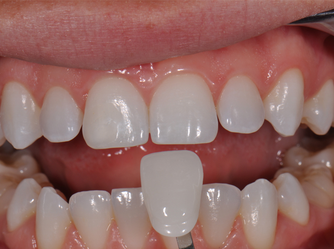 Dental veneers Armenia