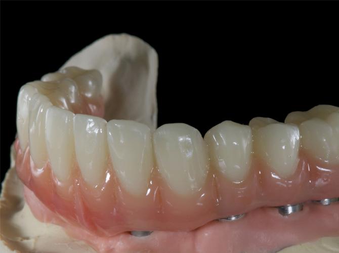 Implant dentures Armenia