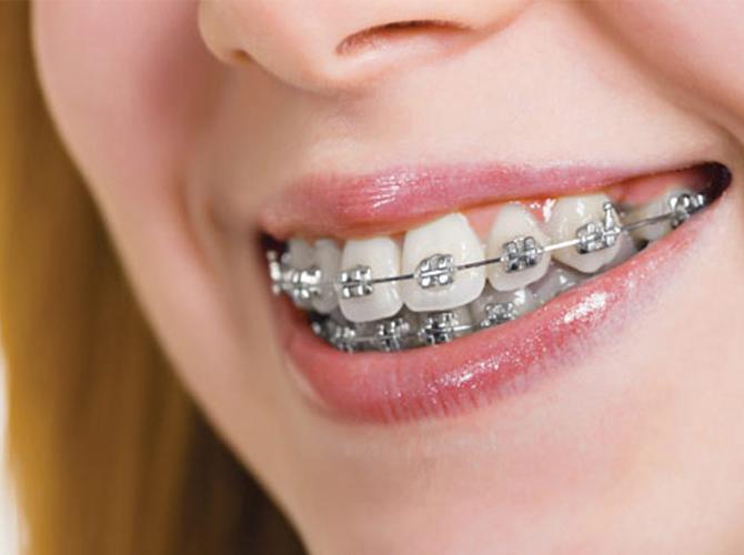 Metallic braces Armenia