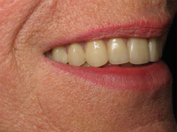 Non-removable dentures Armenia