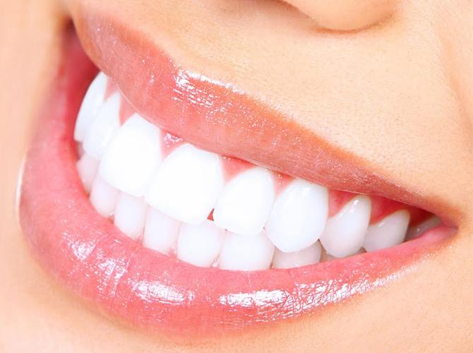 Teeth lamination Armenia
