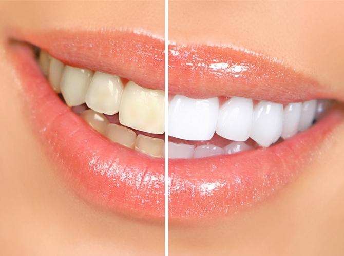 Teeth whitening Armenia