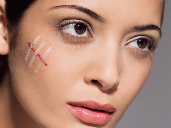 Acne and Scar treatment Armenia