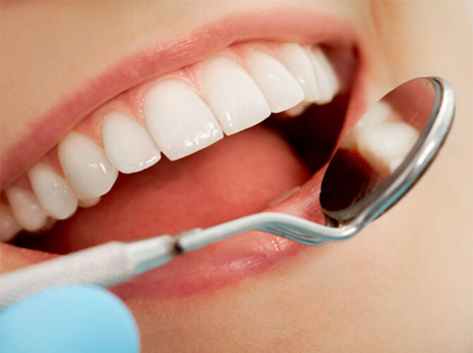 Caries treatment Armenia