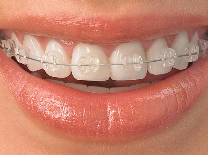 ceramic braces Armenia